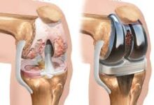 Extension of Knee-Implants ceiling prices